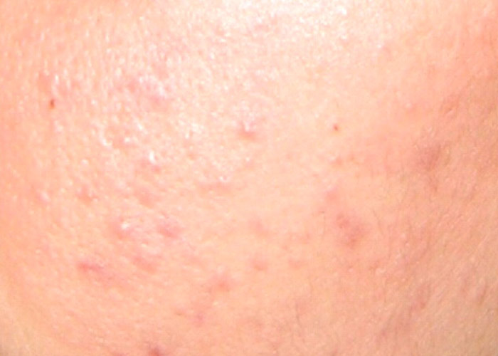 Questions and Answers About Acne